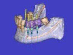 Implantologia senza bisturi
