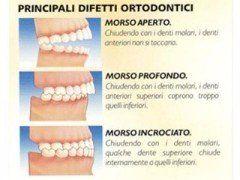 Principali difetti ortodontici