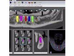 Implantologia senza bisturi Torino