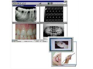 Telecamera orale studio dentistico