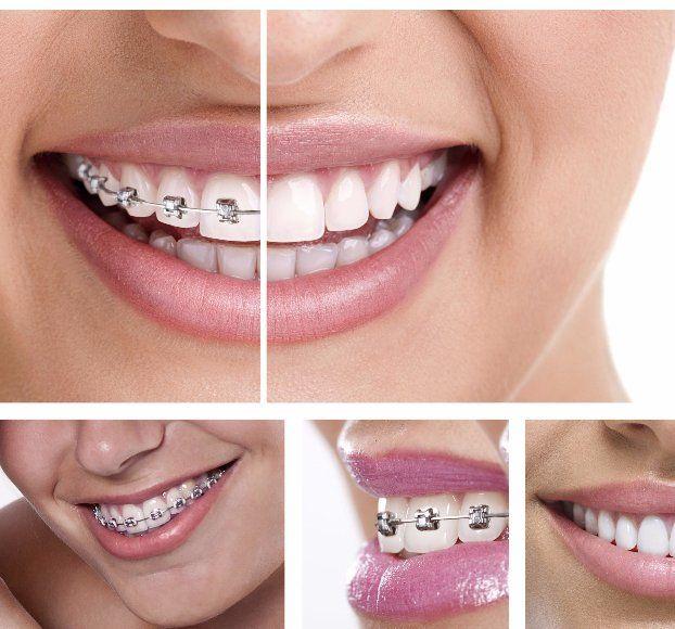 Orthodontist in Chastain GA