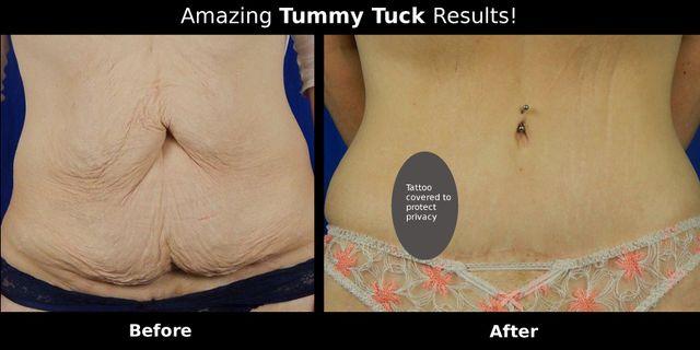 Liposuction Services Suffolk County, NY   Tummy Tuck