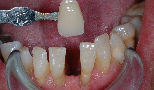 vista di una pinza che sta per installare un incisivo dell'arcata inferiore di una bocca