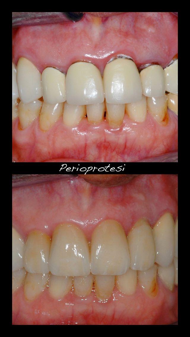 vista ravvicinata di una bocca con denti in brutte condizioni