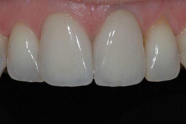 dei denti visti da vicino in ottime condizioni