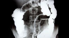 ecografia addominale, visita specialistica all'apparato digerente, esame gastroenterologico