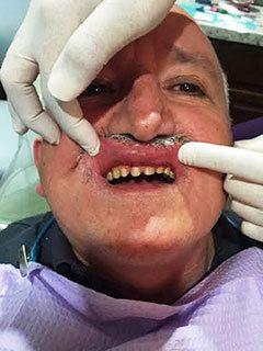 family dentistry Corpus Christi, TX
