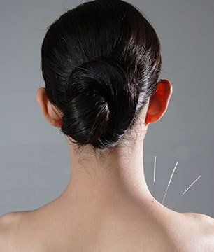 Acupuncture healing therapy