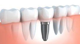 impianti osteointegrati, impianti dentali, innesto denti finti