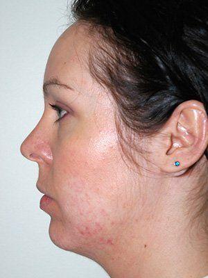 female chin before