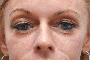 under eyes after