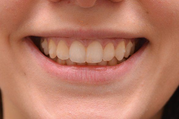 female lips before