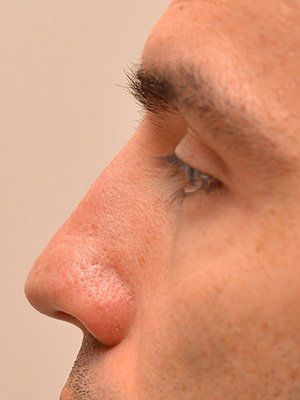 male nose after