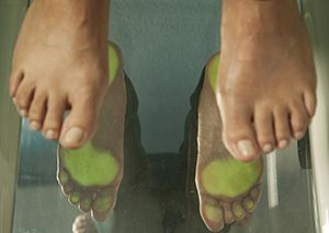 Bunion Treatment Lockport, NY