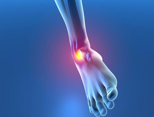 sprains strains medical center of marin urgent care medical clinic