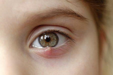 A stye or hordeolum may look like a pimple on an eyelid