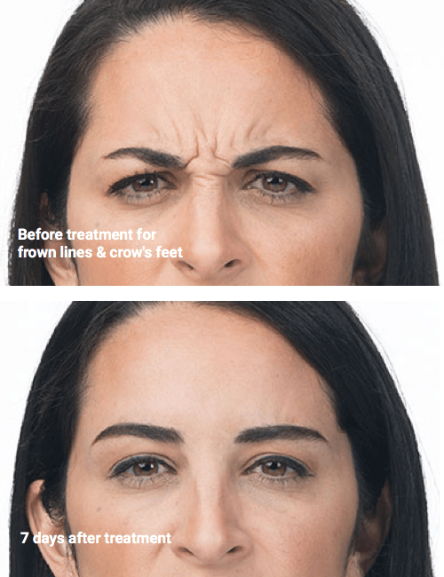Botox Xeomin and Dysport Wrinkle Reduction at Precision