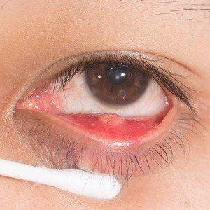 A chalazion may feel like a hard bump under an eyelid
