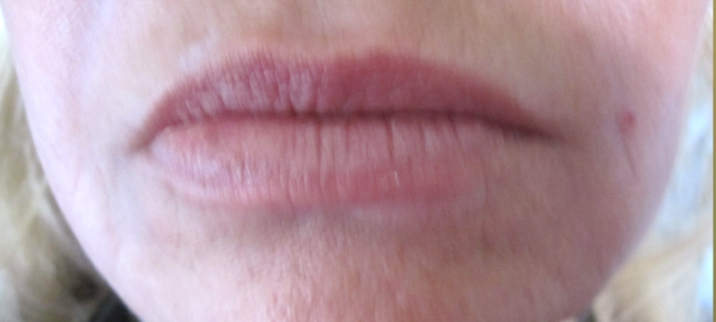 Placerville Permanent Makeup lips before