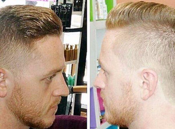 hair before treatment