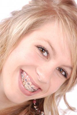 Smiling young women with braces