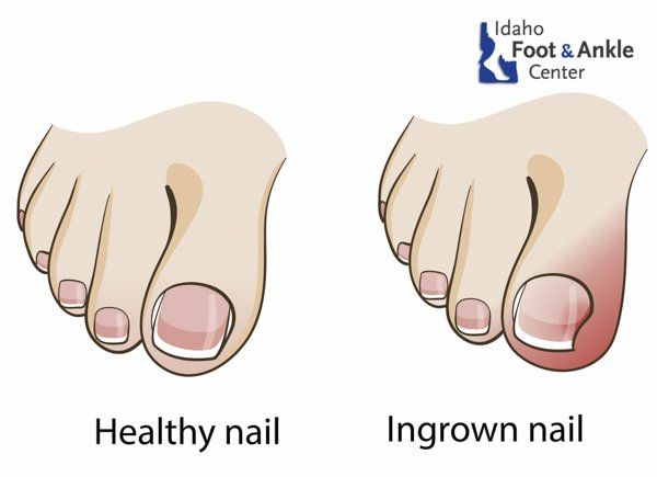 Ingrown Toenails | Idaho Foot & Ankle Center