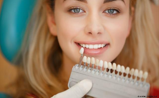 Messung der Zahnaufhellung mit einer sog. Farbskala