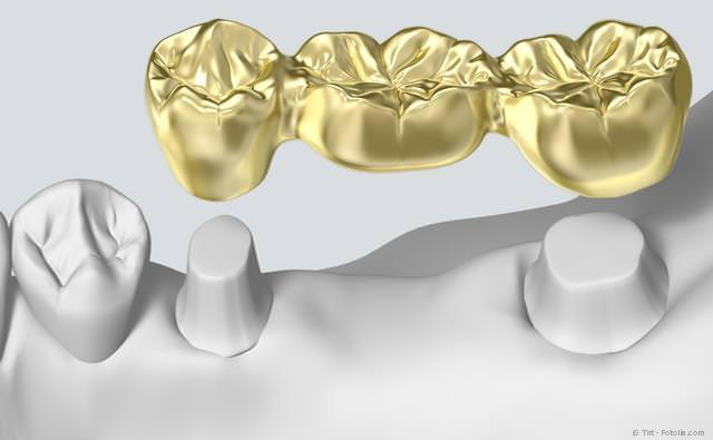 Für eine Zahnbrücke müssten die Nachbarzähne abgeschliffen werden. Bei Implantaten ist das nicht erforderlich.