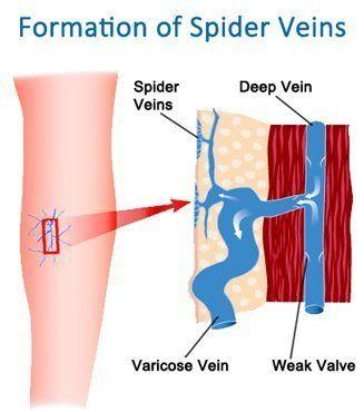 venele varicoase în ezoterică cum să avertizați vene varicoase