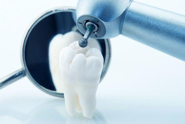 pulizia professionale dei denti