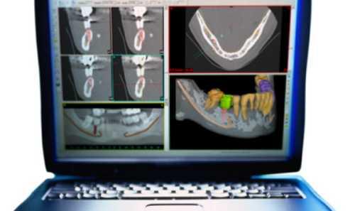 radiografia di paziente vista da monitor di computer