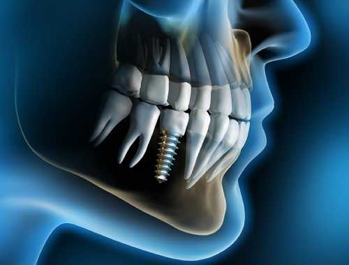 render a computer di implantologia dentale su paziente