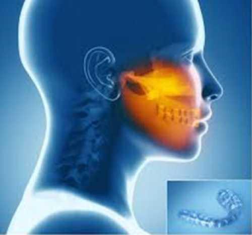 bite per paziente con dolore ai denti