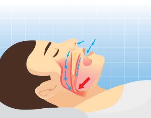 paziente con disturbi del sonno
