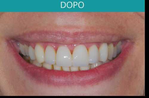 denti di paziente dopo l'operazione