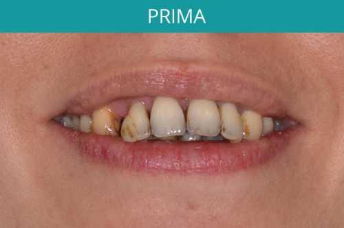 denti di paziente prima dell'operazione