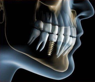 profilo di un impianto dentale