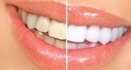 prima e dopo uno sbiancamento ai denti