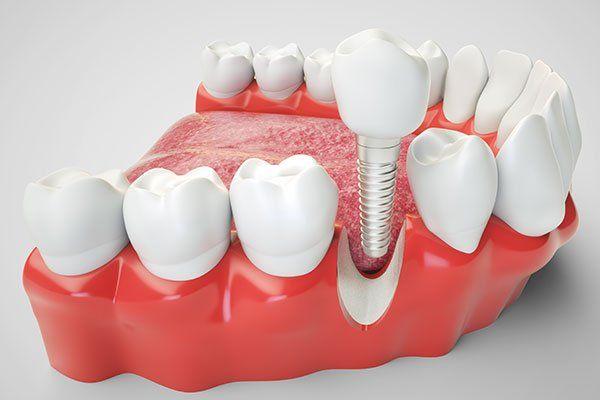 immagine di come si inserisce il nuovo dente