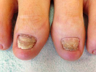 After Thinning The Nails A Wilde Pedique Plus Overlay Can Be Lied To Prevent Fungus Penetrating Nail