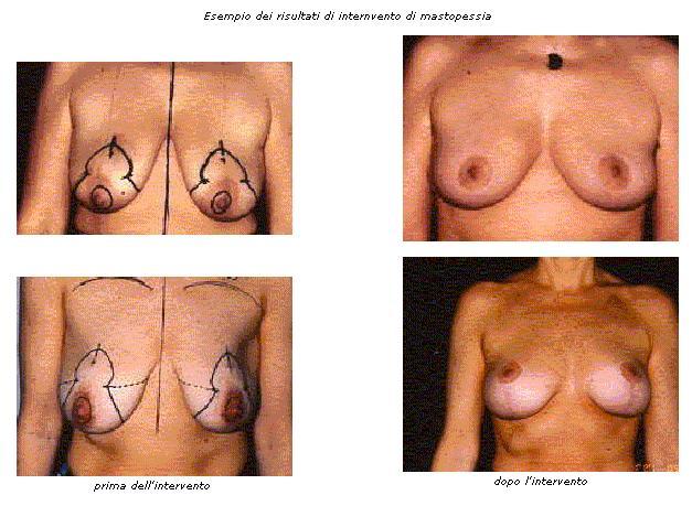 mastopessi, riduzione seno cadente, aumento tono seno