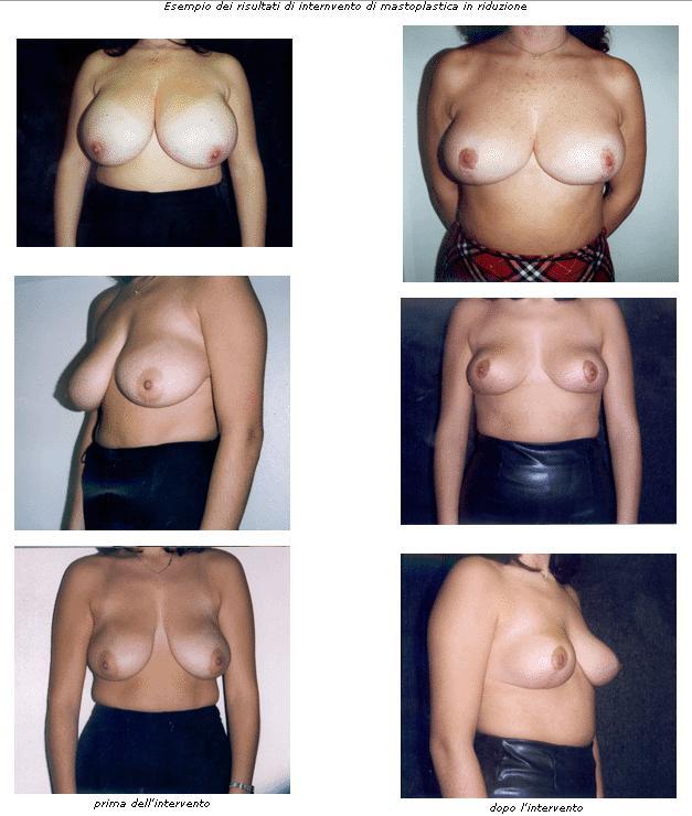 mastoplastica riduttiva, riduzione seno, riduzione volume seno