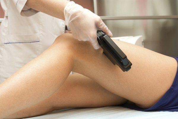 depilazione laser, terapia laser, laser medicale