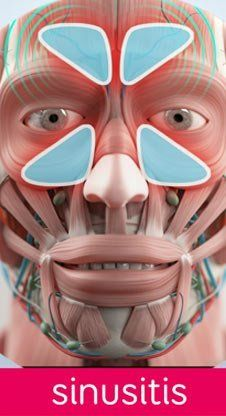 What is Sinusitis? NYC Sinusitis Treatments Located in the West Village of Manhattan New York City 10014