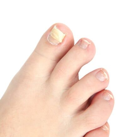 Ingrown Toenails - Bloomington-Normal, IL - Cortese Foot and