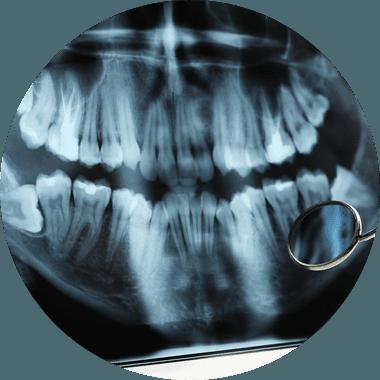 X-Ray photo of teeth