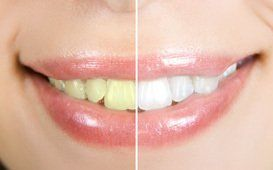 Cosmetic Dentist in Albany, NY