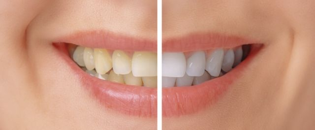 Affordable Cosmetic Dentist - Albany, NY