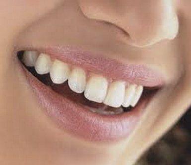 ablazione tartaro, sbiancamento dentale, estetica dentale