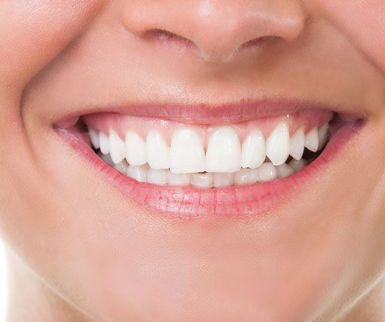 teeth whitening dentist Greensboro, NC